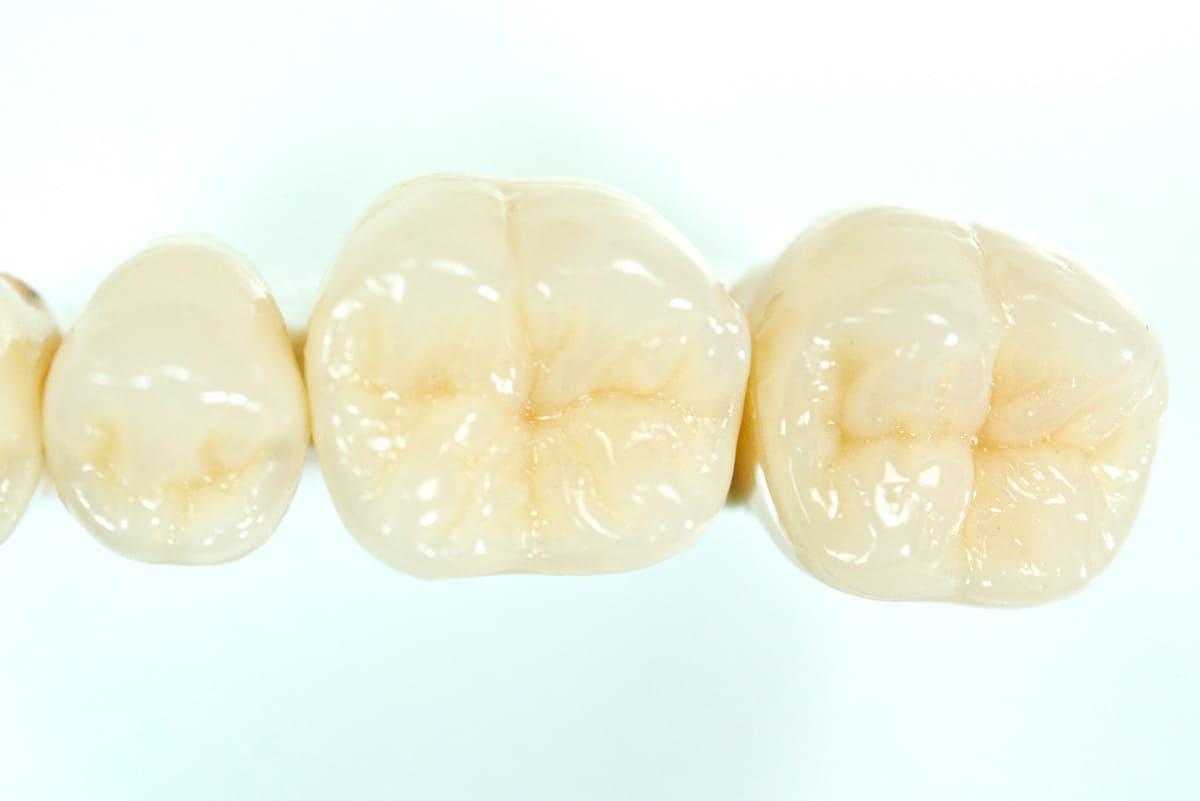 世田谷区の歯医者 尾山台駅前歯医者 噛み合わせ治療