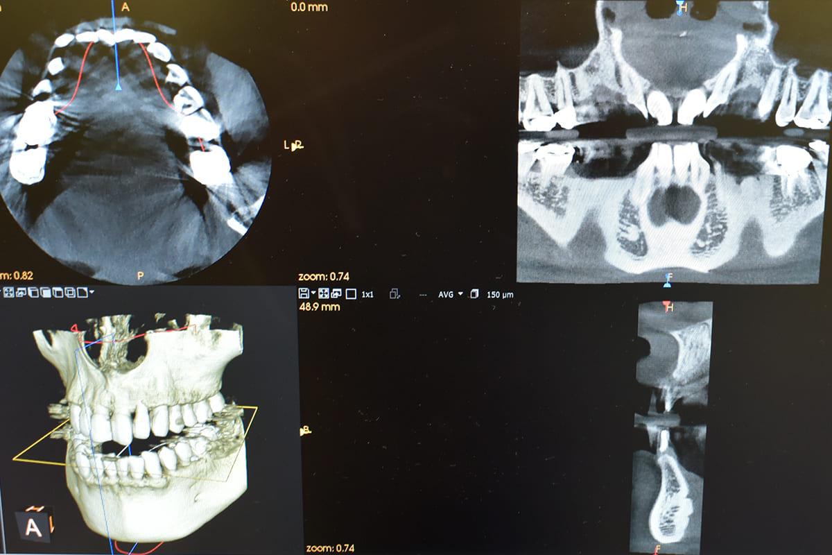 世田谷区の歯医者 尾山台駅前歯医者 日々進歩の歯科治療のための日々勉強