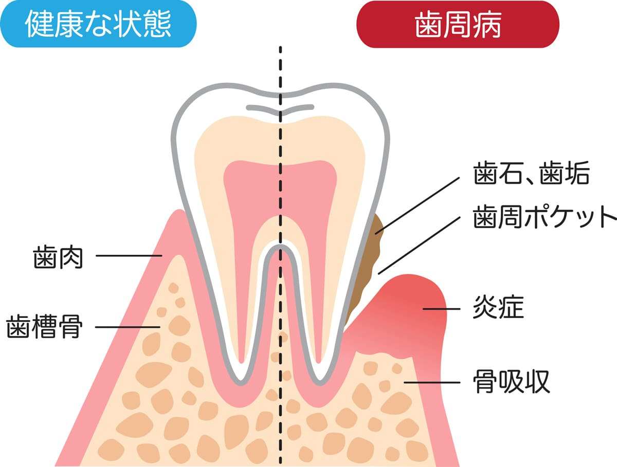 世田谷区の歯医者 尾山台駅前歯医者 歯周病ってどんな病気?